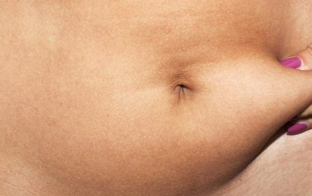 Liposuction thumbnail