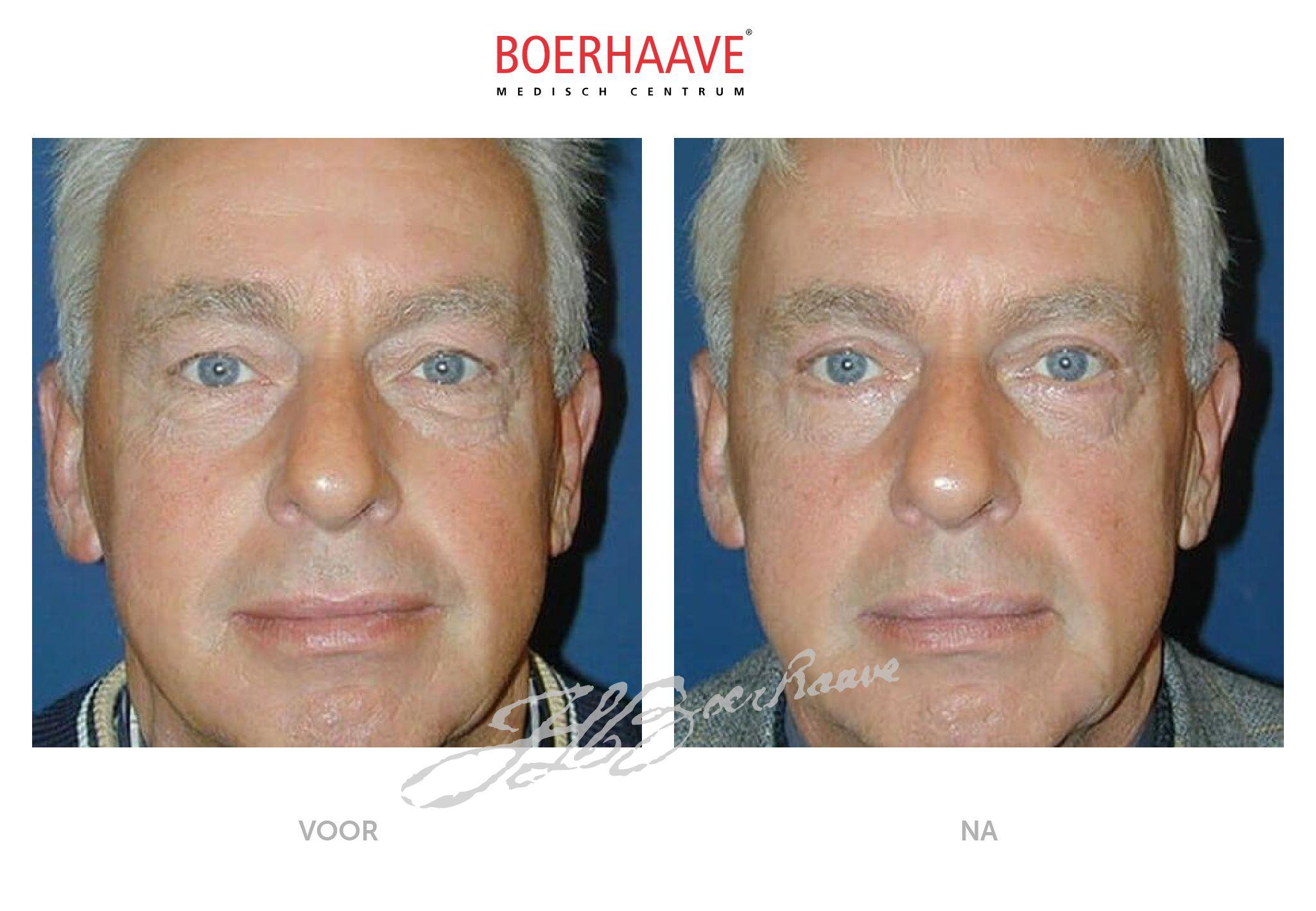 Voor na foto van ooglidcorrectie behandeling